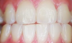 How Does Teeth Whitening Work?